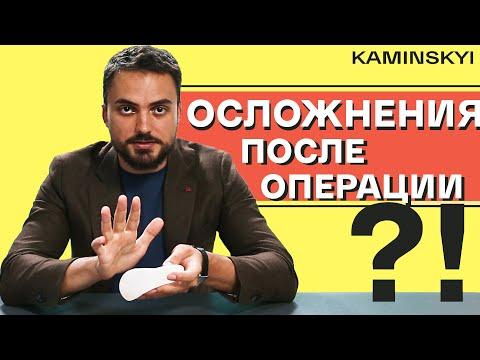 ОСЛОЖНЕНИЯ ПОСЛЕ УВЕЛИЧЕНИЯ ГРУДИ | COMPLICATIONS AFTER BREAST AUGMENTATION ★ EDGAR KAMINSKYI