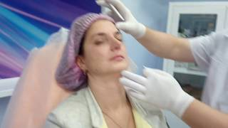 Ботулинотерапия. Ксеомин. Разметка