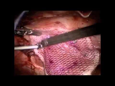 Robotic Ventral Hernia Repair