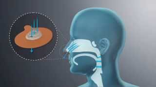 Provent Therapy: An Alternative to CPAP for Sleep Apnea - DirectHomeMedical.com