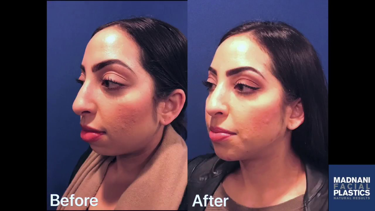 Jawline & Chin Contouring with Dermal Fillers - YouTube