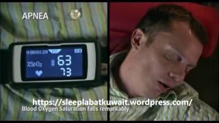 snoring may kill you ..........