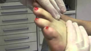 Dedos en garra  . masaje prevencion-