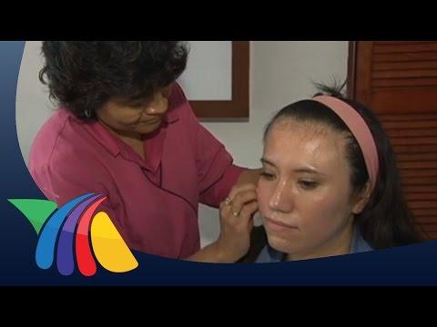 Como curar el hongo de la piel sobre el dedo de la mano