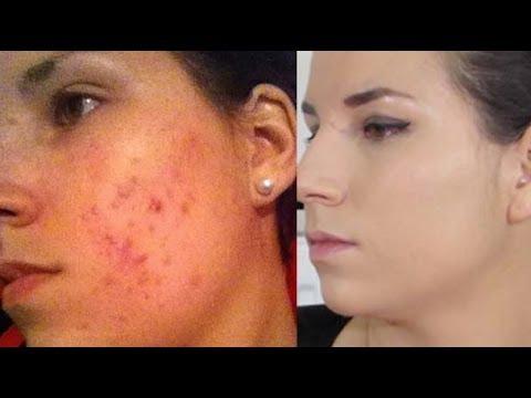 4cc447675317 CAMOUFLER SON ACNE - The Beauty Progress - YouTube