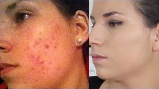 CAMOUFLER SON ACNE - The Beauty Progress