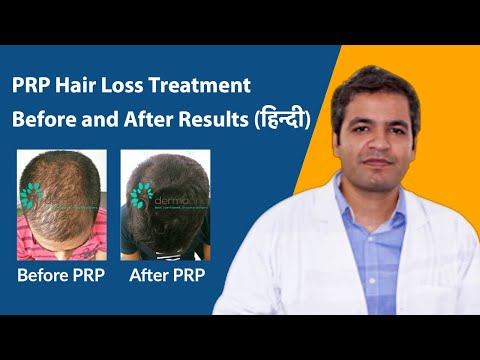 PRP hair loss treatment before and after results in Hindi | Side effects of prp hair loss treatment