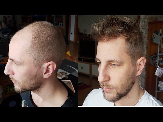 Haartransplantation Tu?rkei Vorher Nachher