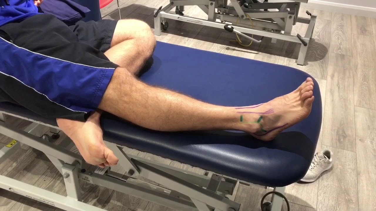 Ankle Series 1 - Anatomy of an Ankle Sprain - YouTube