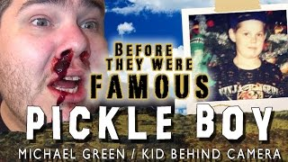 PICKLE BOY - Before They Were Famous