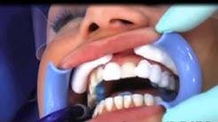 Cosmetic Dentistry - Teeth Bonding & Dental Bonding #2