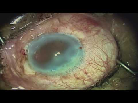 Cataract Surgery in an Eye with Trachoma