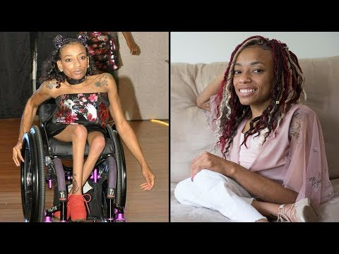 Woman With Spina Bifida Hits The Catwalk  SHAKE MY BEAUTY