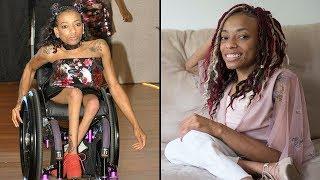 Woman With Spina Bifida Hits The Catwalk | SHAKE MY BEAUTY