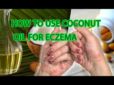 how-to-use-coconut-oil-for-eczema-(nrchannel-)