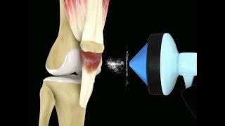 Video ESWT of Patellar Tendinitis, Jumper's Knee download MP3, 3GP, MP4, WEBM, AVI, FLV Desember 2017