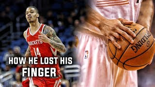 The Sad Story of How Gerald Green Lost His Finger