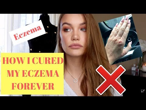 HOW I CURED MY ECZEMA FOREVER