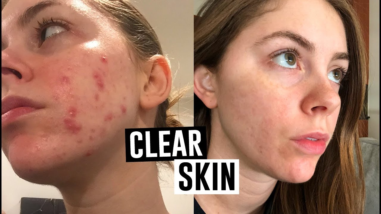 How I Cleared My Cystic And Hormonal Acne Jill Cimorelli Youtube