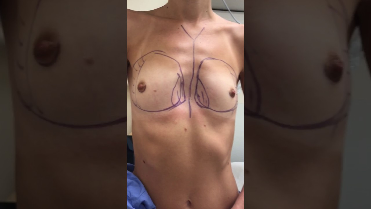 Everything you need to know about breast augmentation