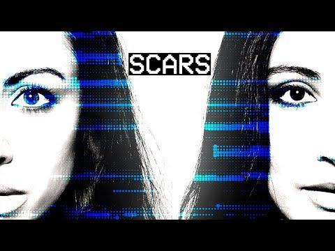 Deer Park Avenue - Scars - Official Music Video