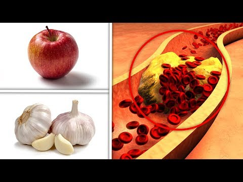 Foods That Lower Cholesterol Fast - Eat These 4 Foods Every Day To Lower Your Cholesterol