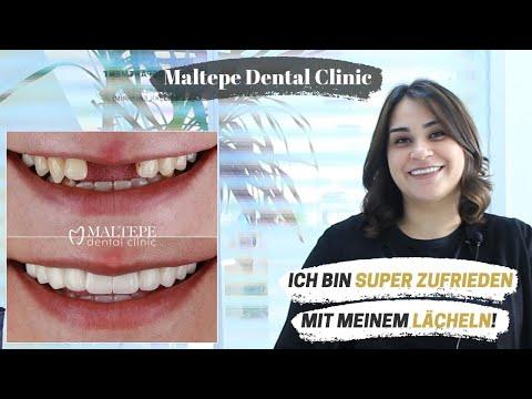 Dental Implants Experience in Istanbul / Turkey | Maltepe Dental Clinic