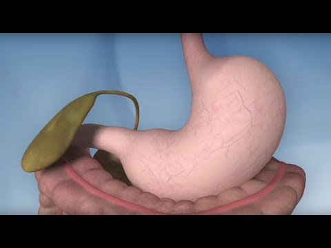 Gastric Bypass Complications – Mayo Clinic