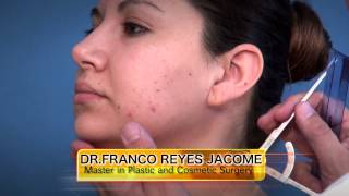 BICHECTOMIA Y LIPOSUCCION DE PAPADA::CHEEK SURGERY AND NECK LIPOSUCTION