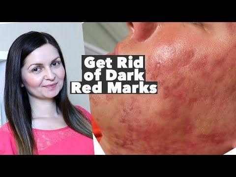 How To Get Rid Of Red Acne Marks Hyperpigmentation Post Inflammatory Erythema Pie Vs Pih Youtube