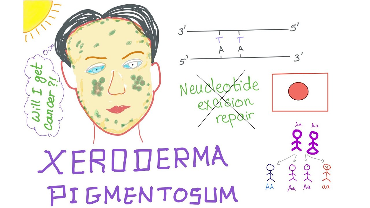 What is xeroderma pigment, its causes and methods of treatment 82