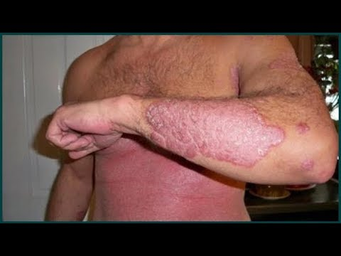Psoriasis Home Remedies (and Pictures) : Natural Ways To Get Rid of Eczema Fast at Home