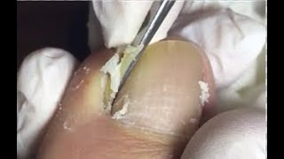 How to clean nails