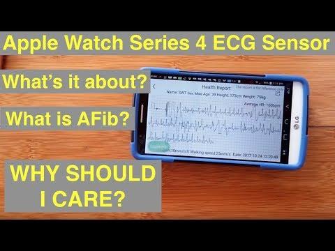 Apple Watch Series 4 ECG: Electrocardiograms & Atrial Fibrillation (AFib)