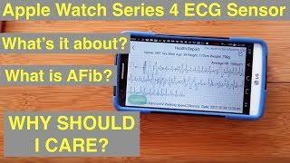 Apple Watch Series 4+ ECG: Electrocardiograms & Atrial Fibrillation (AFib)