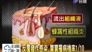 【Avene法國雅漾】0528台視-台灣異位性皮膚炎孩童至法國皮耶法柏水療中心治療