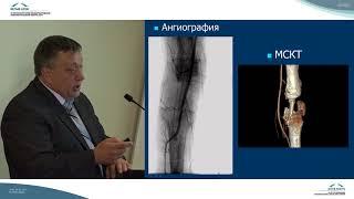 костная пластика дефектов бедренной кости малоберцовым трансплантатом на сосудистой ножке