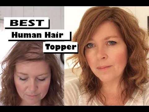 Best human hair toppers & hairpieces for fine thinning hair | One woman's touching story