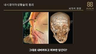 이마주름은 내시경이마성형수술로 해결