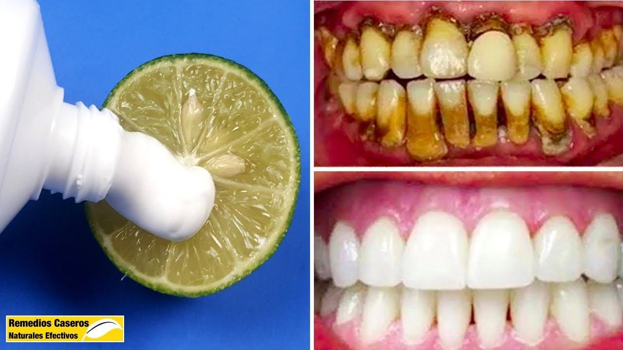recetas+naturales+para+blanquear+los+dientes