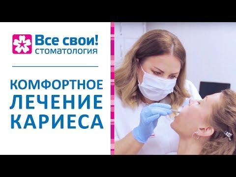 🔬 Современные способы лечения кариеса без боли. Лечение кариеса без боли. Стоматология Все Свои.12+
