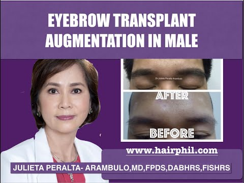 Eyebrow Transplant by FUE technique