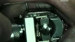 Про лазерную коррекцию зрения(, 2011-03-07T15:34:51.000Z)