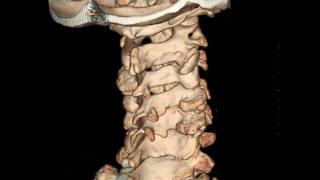 видео компьютерная томография позвоночника