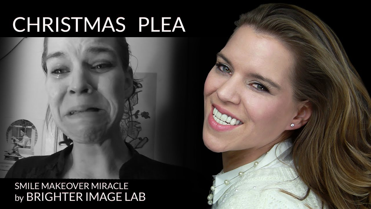 Youtube Video Crying Plea for Dental Smile Makeover-  Brighter Image Lab Helps