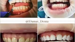Отбеливание зубов White and Perfect + полировка и фторирование(, 2017-09-19T15:23:00.000Z)