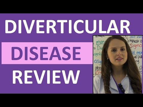 Foods You Can or Can't Eat When You Have Diverticulitis