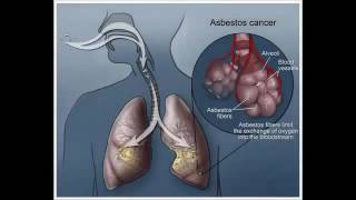 peritoneal mesothelioma treatment