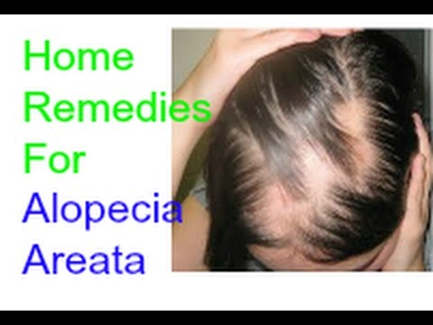 Alopecia Areata Natural Home Remedies Treatment YouTube