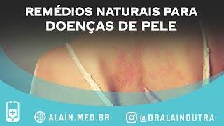 De eczema prescrição creme anti-inflamatório para